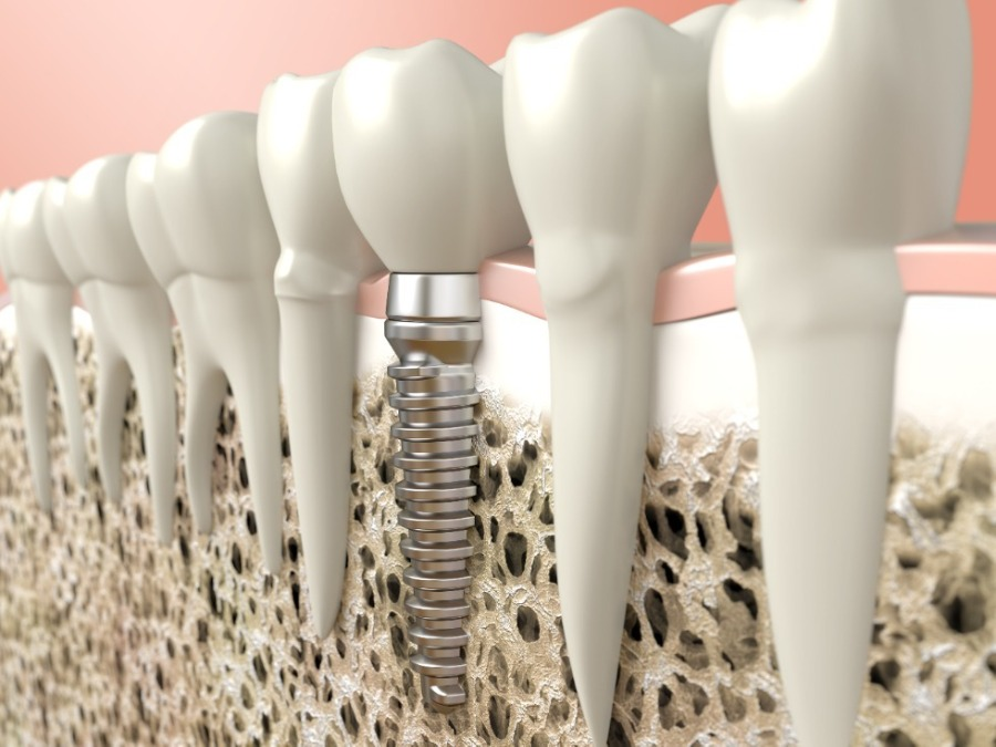 5-most-common-misunderstandings-about-dental-implants